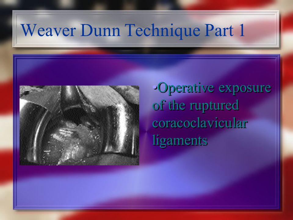 Weaver Dunn Technique Part 1 Operative exposure of the ruptured coracoclavicular ligaments