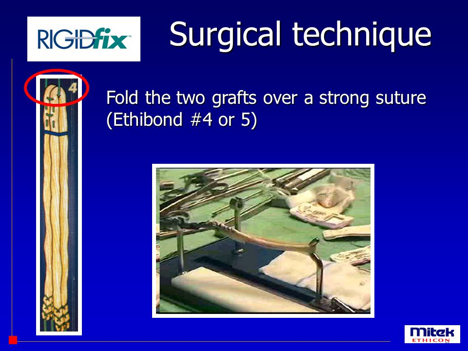 Surgical technique Fold the two grafts over a strong suture (Ethibond #4 or 5)