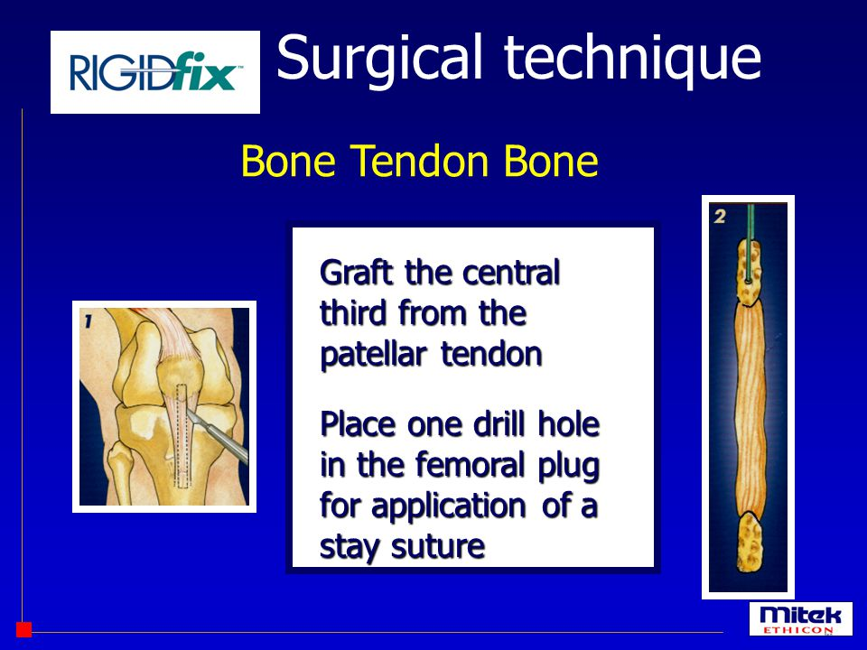Surgical technique Bone Tendon Bone Graft the central third from the patellar tendon Place one drill hole in the femoral plug for application of a sta