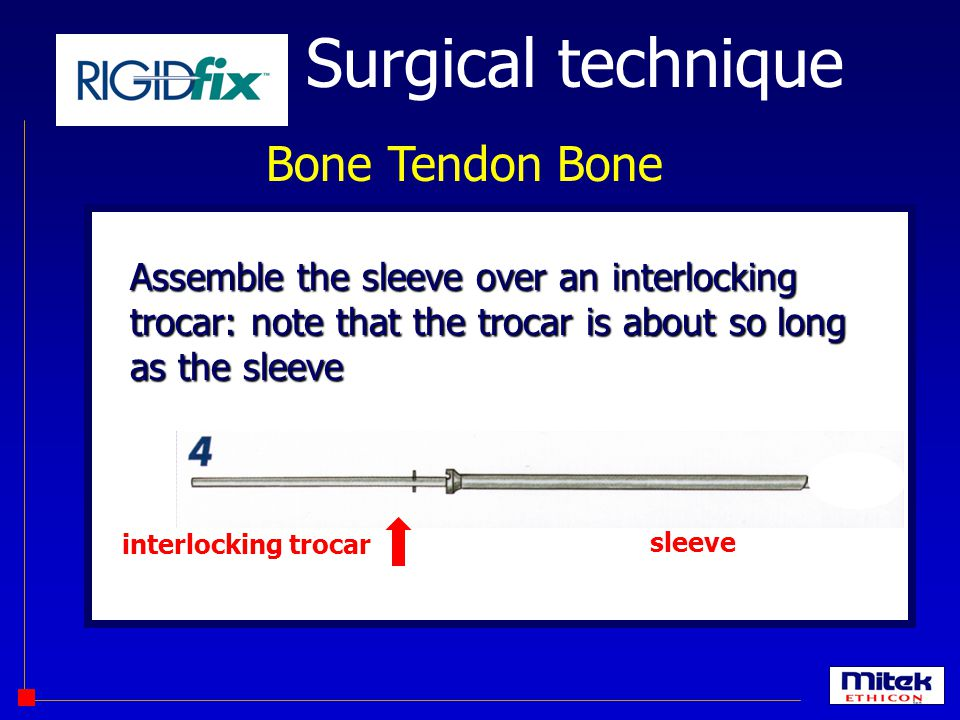 Surgical technique Bone Tendon Bone interlocking trocar sleeve Assemble the sleeve over an interlocking trocar: note that the trocar is about so long