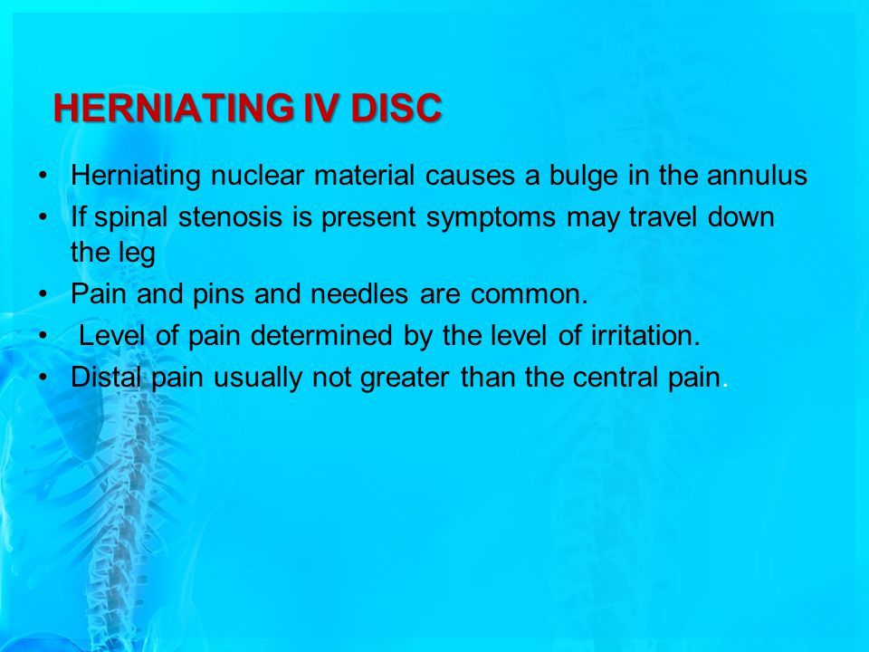 HERNIATING IV DISC Herniating nuclear material causes a bulge in the annulus If spinal stenosis is present symptoms may travel down the leg Pain and pins and needles are common.