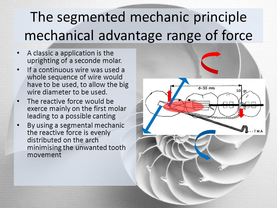The segmented mechanic principle mechanical advantage range of force A classic a application is the uprighting of a seconde molar. If a continuous wir