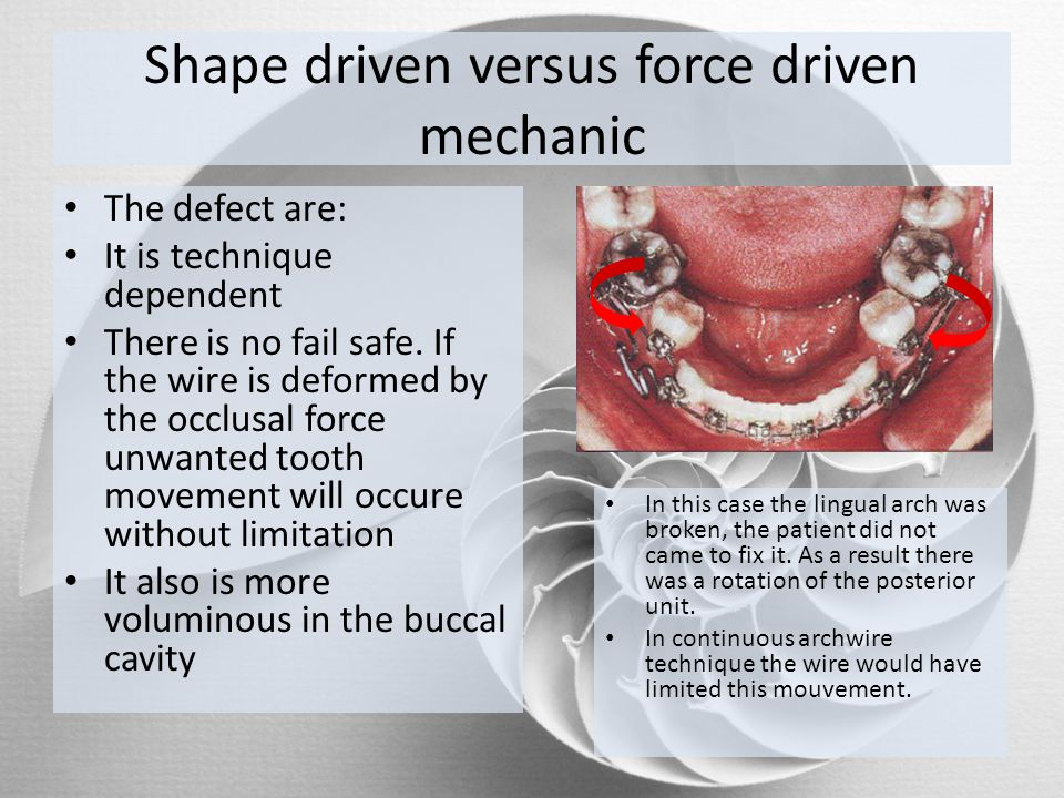 Shape driven versus force driven mechanic The defect are: It is technique dependent There is no fail safe. If the wire is deformed by the occlusal for