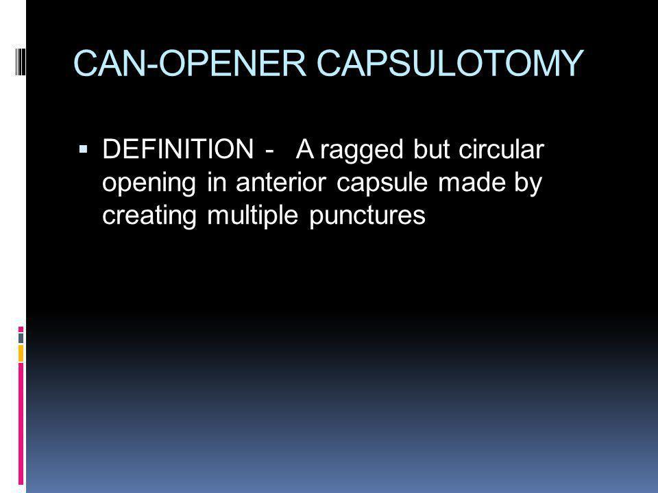 ADVANTAGE Minimal tissue trauma Almost intact capsular bag Facilitates cortex removal Polishing of anterior capsule easier In PC rent - anterior capsule utilised for IOL support
