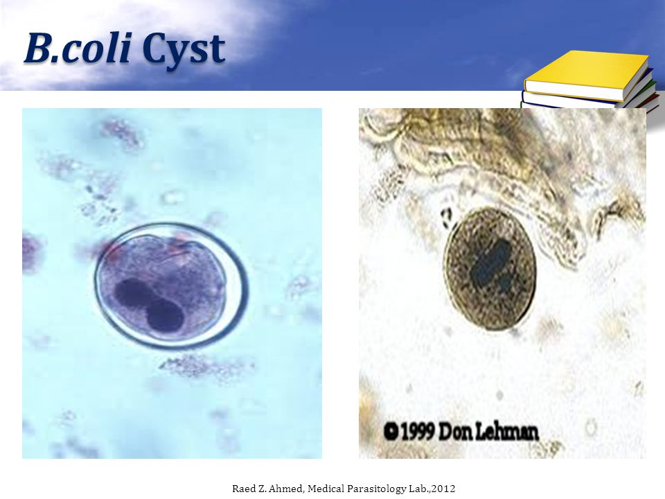 B.coli Cyst Raed Z. Ahmed, Medical Parasitology Lab.,2012