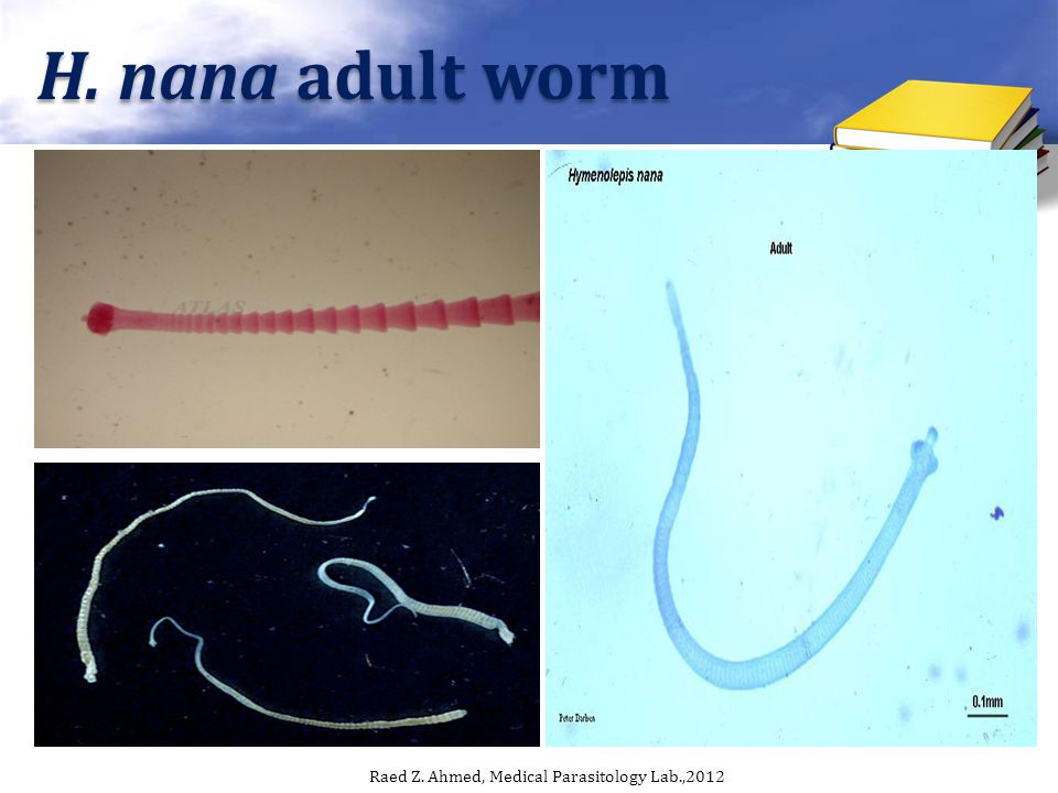 H. nana adult worm