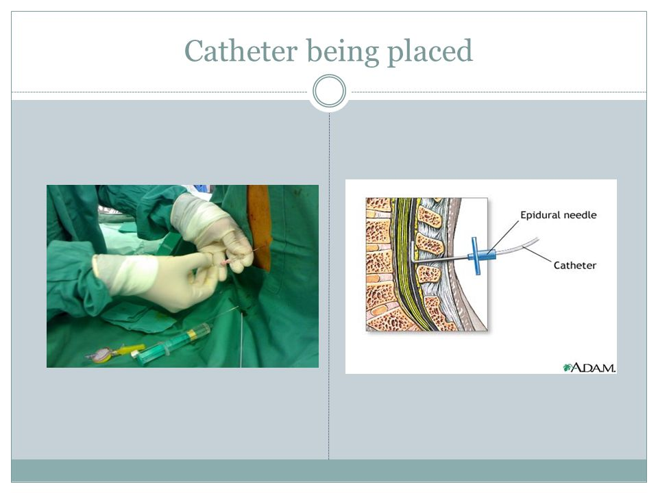 Femoral nerve block Anesthesia to anterior thigh and anterior knee