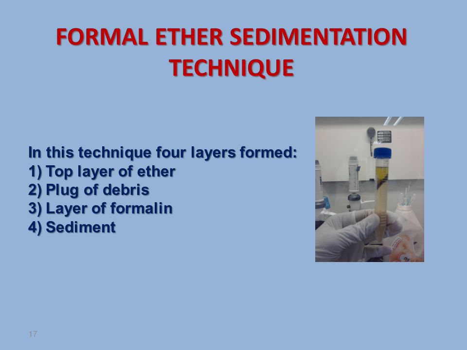 FORMAL ETHER SEDIMENTATION TECHNIQUE In this technique four layers formed: 1)Top layer of ether 2)Plug of debris 3)Layer of formalin 4)Sediment 17
