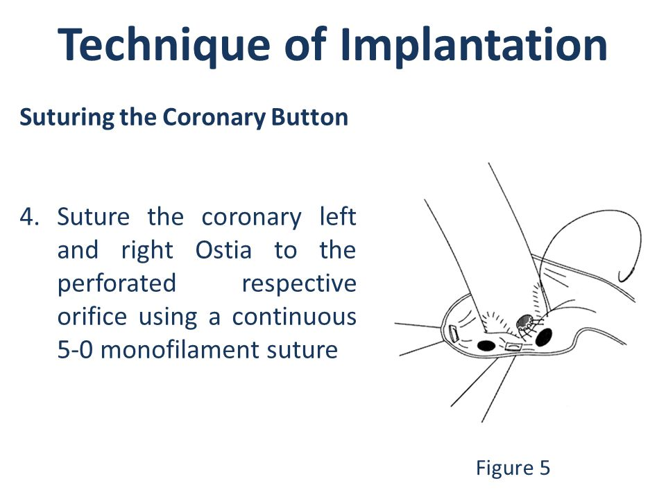 Technique of Implantation Figure 5 Suturing the Coronary Button 4.Suture the coronary left and right Ostia to the perforated respective orifice using a continuous 5-0 monofilament suture