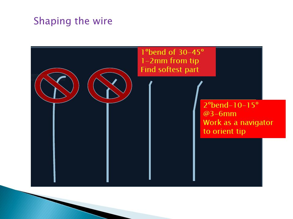 Shaping the wire 1ºbend of 30-45º 1-2mm from tip Find softest part 2ºbend-10-15º @3-6mm Work as a navigator to orient tip