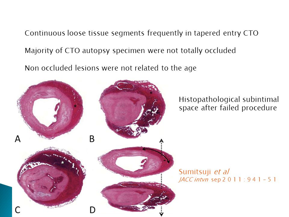 Continuous loose tissue segments frequently in tapered entry CTO Majority of CTO autopsy specimen were not totally occluded Non occluded lesions were not related to the age Histopathological subintimal space after failed procedure Sumitsuji et al JACC intvn sep 2 0 1 1 : 9 4 1 – 5 1