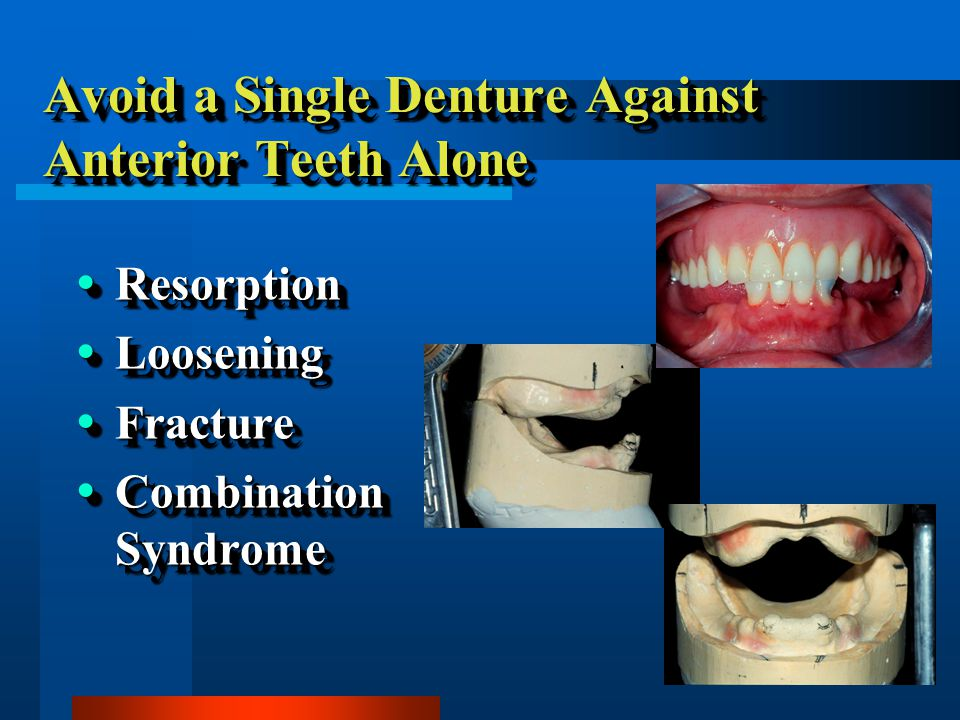 Avoid a Single Denture Against Anterior Teeth Alone Resorption Resorption Loosening Loosening Fracture Fracture Combination Syndrome Combination Syndrome Resorption Resorption Loosening Loosening Fracture Fracture Combination Syndrome Combination Syndrome