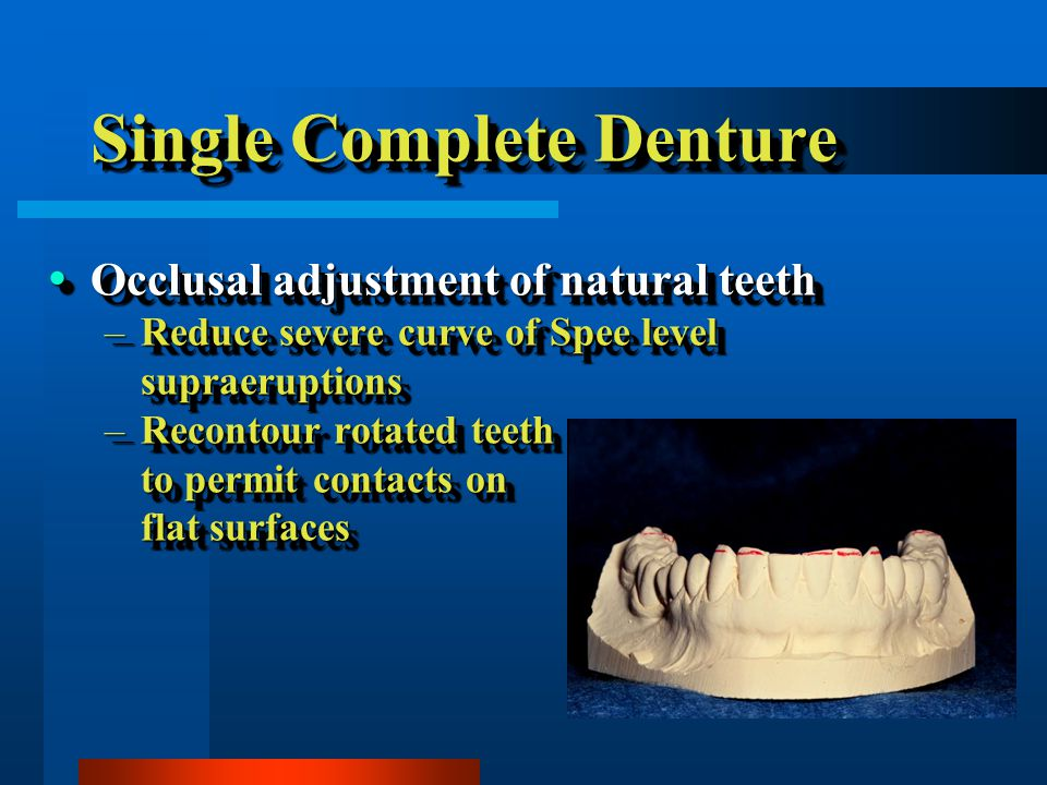 Single Complete Denture Occlusal adjustment of natural teeth Occlusal adjustment of natural teeth –Reduce severe curve of Spee level supraeruptions –Recontour rotated teeth to permit contacts on flat surfaces Occlusal adjustment of natural teeth Occlusal adjustment of natural teeth –Reduce severe curve of Spee level supraeruptions –Recontour rotated teeth to permit contacts on flat surfaces