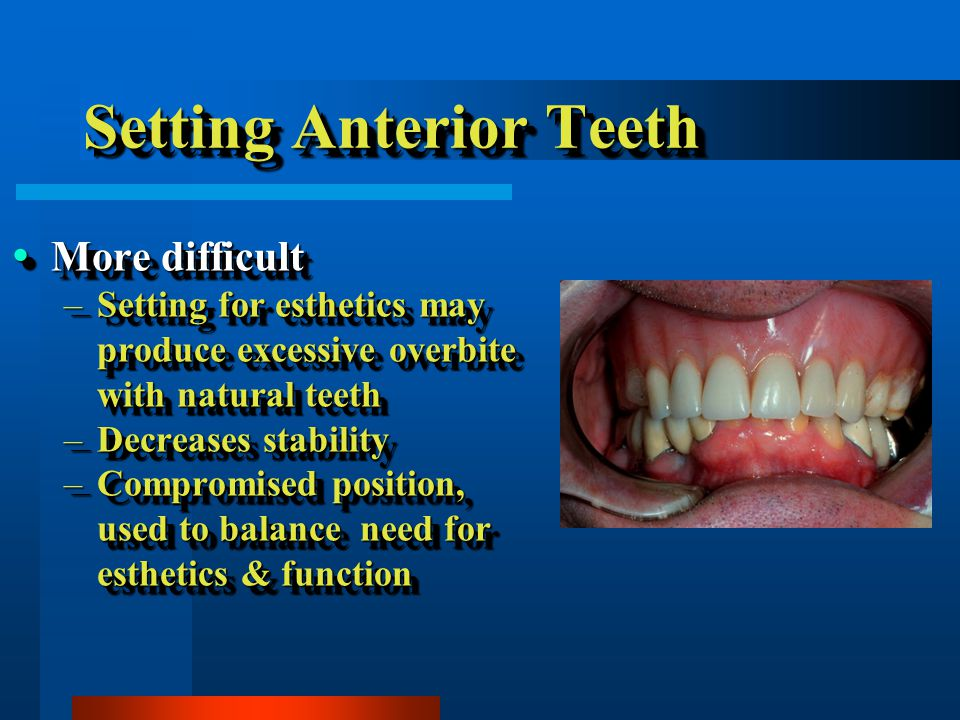 Setting Anterior Teeth More difficult More difficult –Setting for esthetics may produce excessive overbite with natural teeth –Decreases stability –Compromised position, used to balance need for esthetics & function More difficult More difficult –Setting for esthetics may produce excessive overbite with natural teeth –Decreases stability –Compromised position, used to balance need for esthetics & function