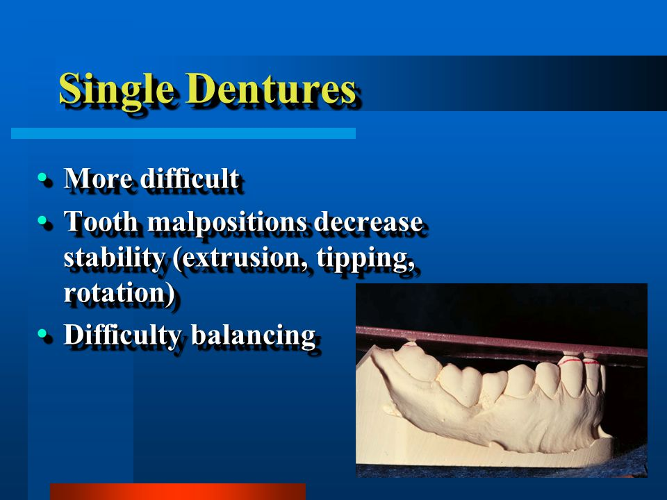 Single Dentures More difficult More difficult Tooth malpositions decrease stability (extrusion, tipping, rotation) Tooth malpositions decrease stability (extrusion, tipping, rotation) Difficulty balancing Difficulty balancing More difficult More difficult Tooth malpositions decrease stability (extrusion, tipping, rotation) Tooth malpositions decrease stability (extrusion, tipping, rotation) Difficulty balancing Difficulty balancing