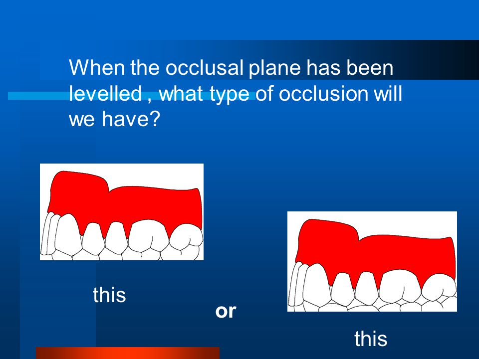 When the occlusal plane has been levelled, what type of occlusion will we have? this or this