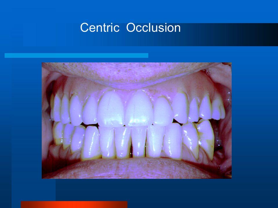 Centric Occlusion