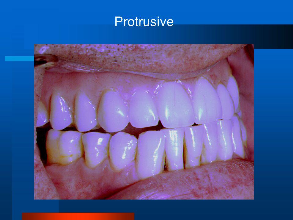 Protrusive