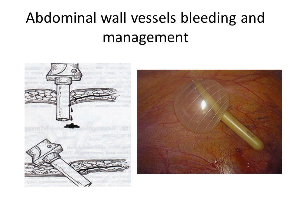 Abdominal wall vessels bleeding and management