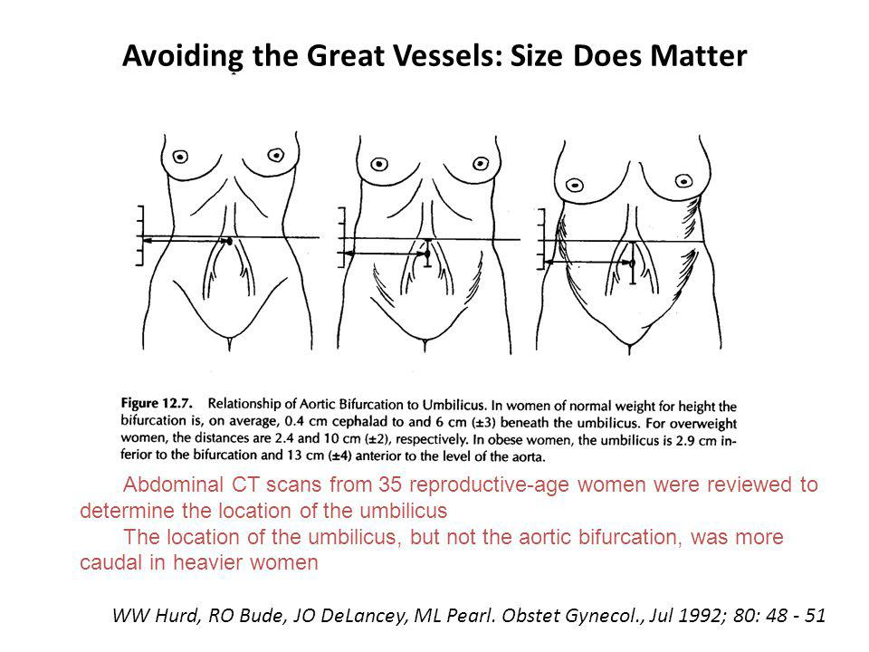 Avoiding the Great Vessels: Size Does Matter WW Hurd, RO Bude, JO DeLancey, ML Pearl. Obstet Gynecol., Jul 1992; 80: 48 - 51 Abdominal CT scans from 3