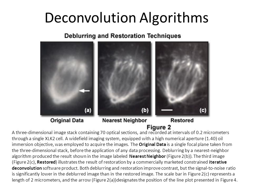 Deconvolution Algorithms A three-dimensional image stack containing 70 optical sections, and recorded at intervals of 0.2 micrometers through a single