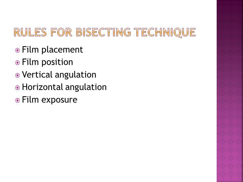 Film placement Film position Vertical angulation Horizontal angulation Film exposure