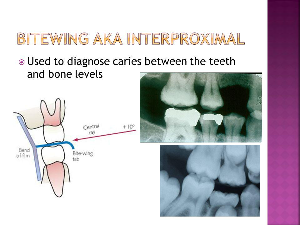 Used to diagnose caries between the teeth and bone levels