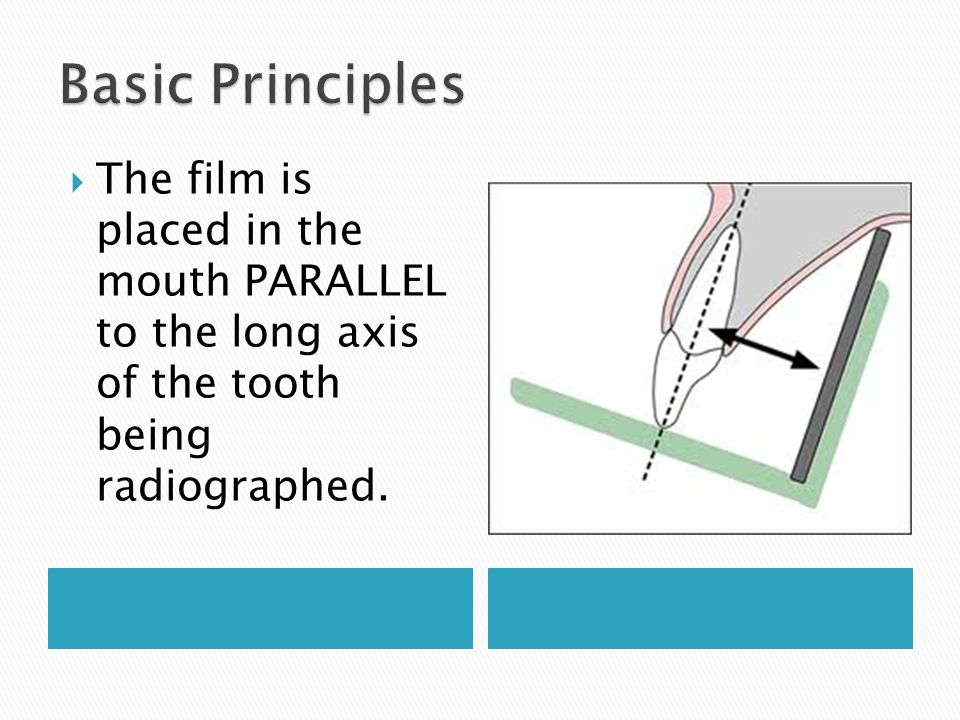 The film is placed in the mouth PARALLEL to the long axis of the tooth being radiographed.