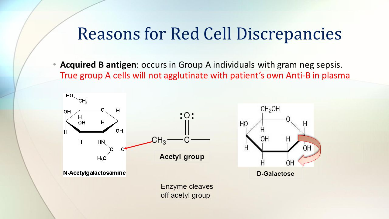 Acquired B antigen: occurs in Group A individuals with gram neg sepsis. True group A cells will not agglutinate with patients own Anti-B in plasma Rea
