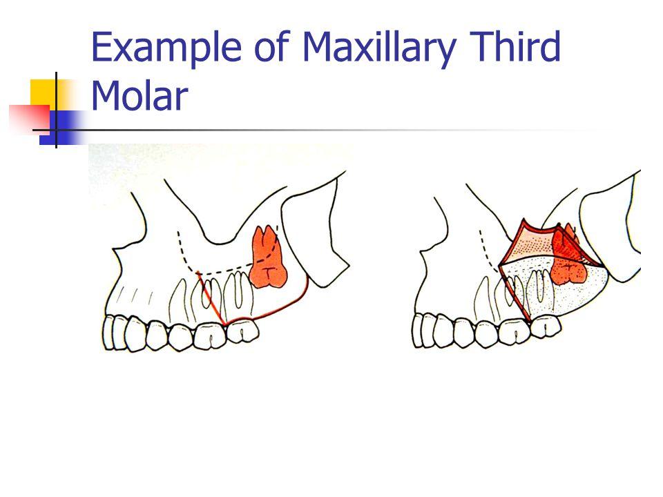 Example of Maxillary Third Molar