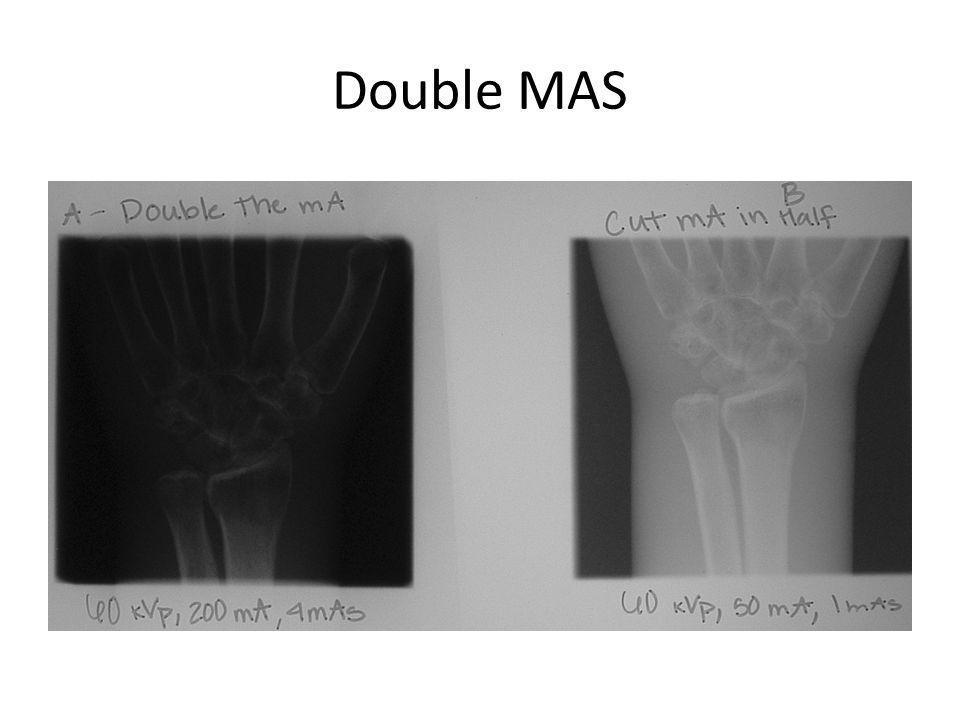 Contrast Compensation Factors KVP MAS Collimation OID Patient (Do we adjust the patient?)