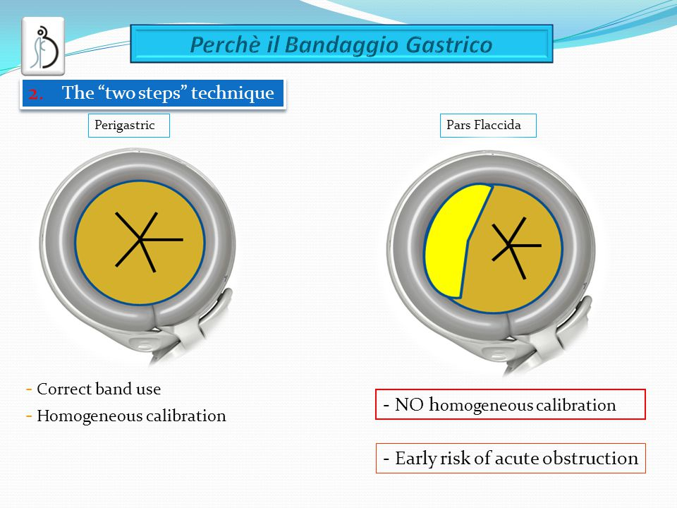 PerigastricPars Flaccida 2. The two steps technique - Correct band use - Homogeneous calibration - NO h omogeneous calibration - Early risk of acute o