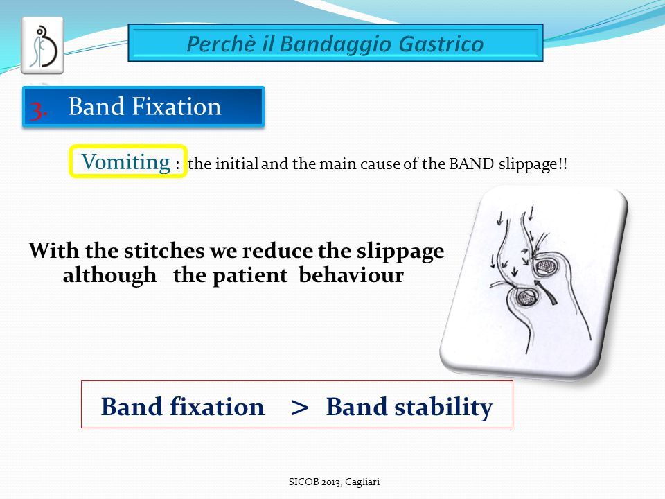 SICOB 2013, Cagliari With the stitches we reduce the slippage although the patient behaviour Band fixation > Band stability Vomiting : the initial and the main cause of the BAND slippage!.