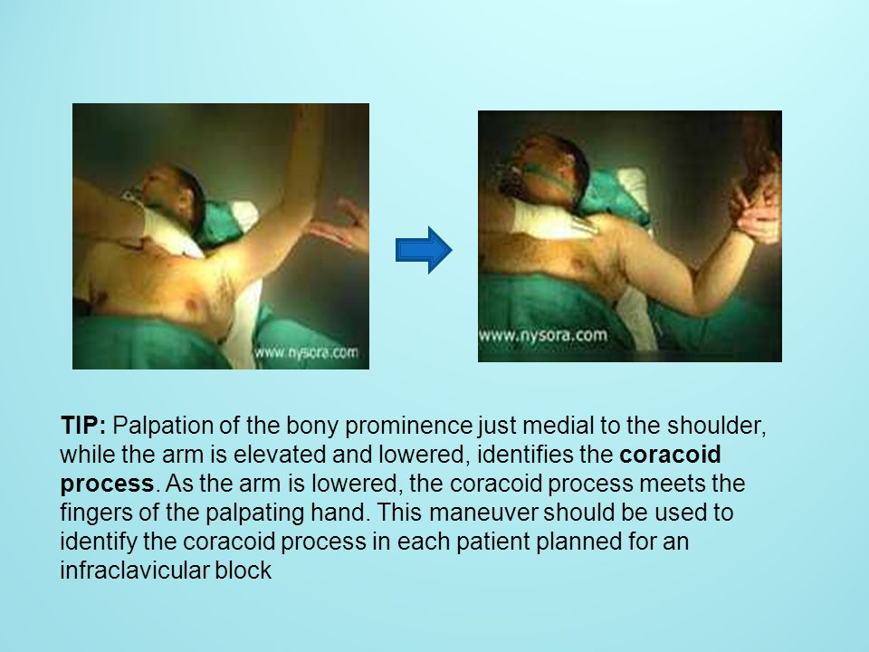 TIP: Palpation of the bony prominence just medial to the shoulder, while the arm is elevated and lowered, identifies the coracoid process. As the arm