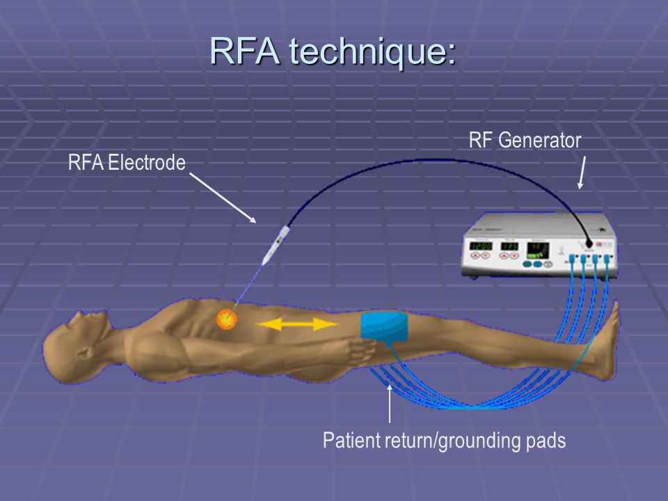 RF Generator Patient return/grounding pads RFA Electrode RFA technique: