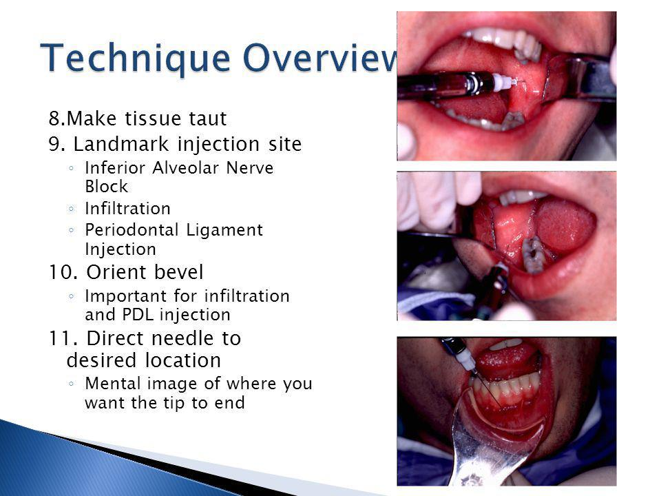 8.Make tissue taut 9. Landmark injection site Inferior Alveolar Nerve Block Infiltration Periodontal Ligament Injection 10. Orient bevel Important for