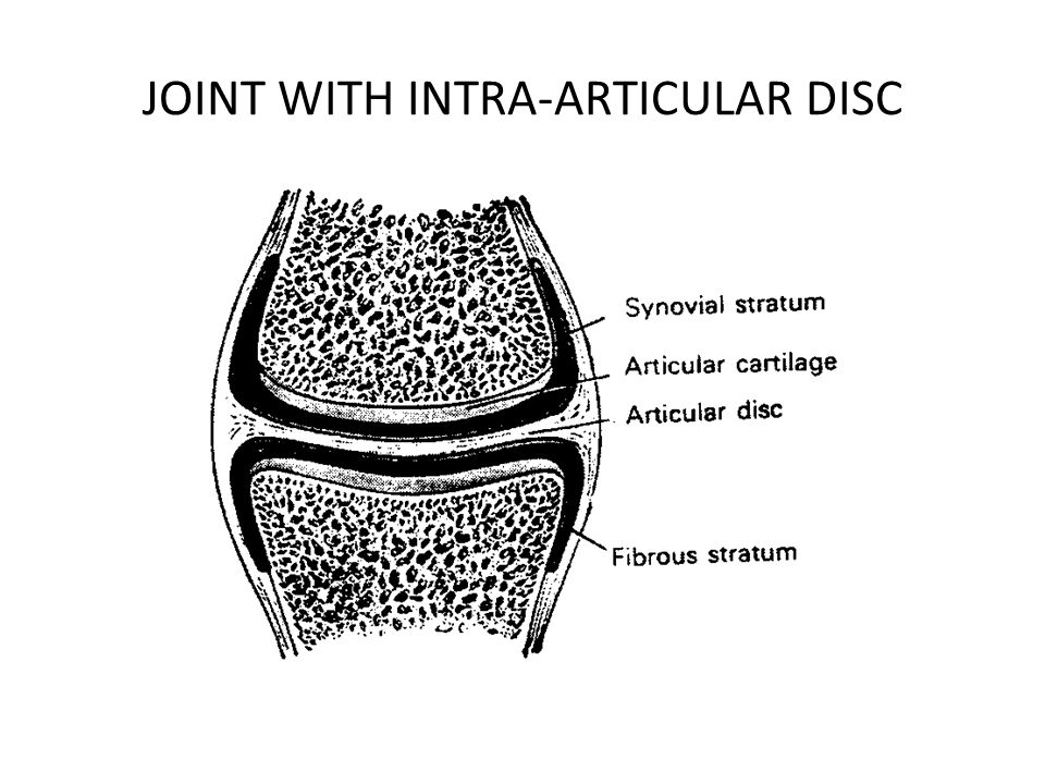 JOINT WITH INTRA-ARTICULAR DISC