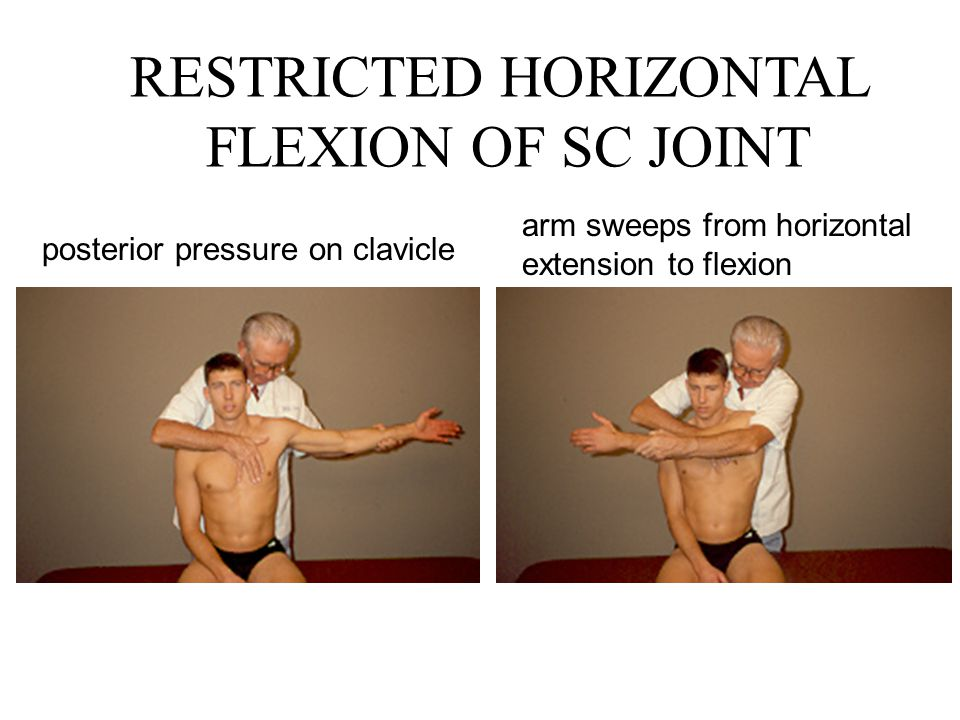 RESTRICTED HORIZONTAL FLEXION OF SC JOINT posterior pressure on clavicle arm sweeps from horizontal extension to flexion