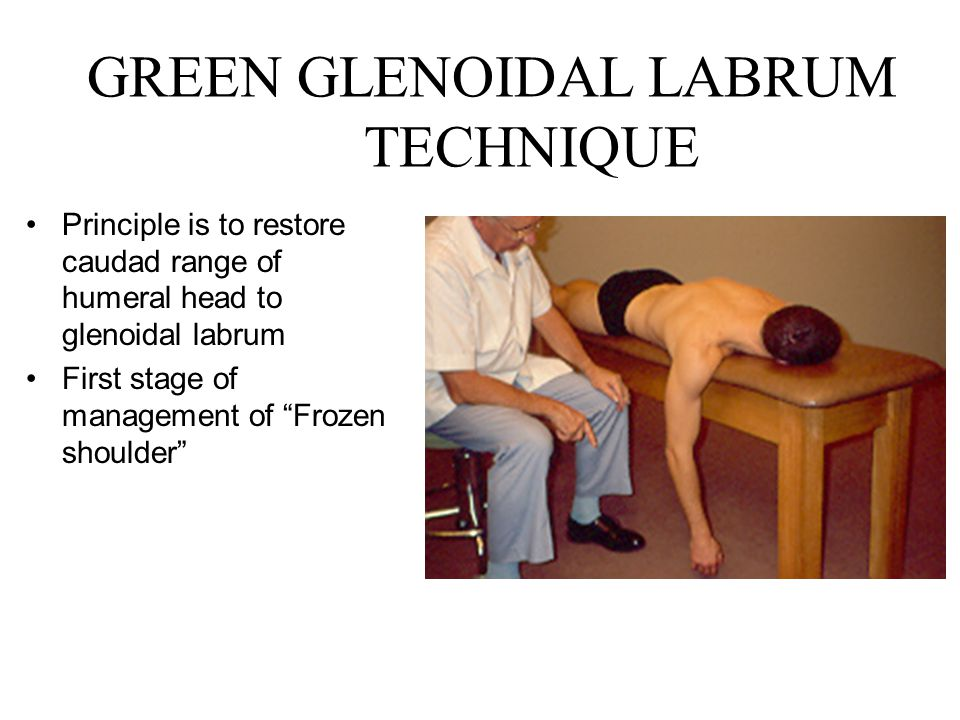 GREEN GLENOIDAL LABRUM TECHNIQUE Principle is to restore caudad range of humeral head to glenoidal labrum First stage of management of Frozen shoulder