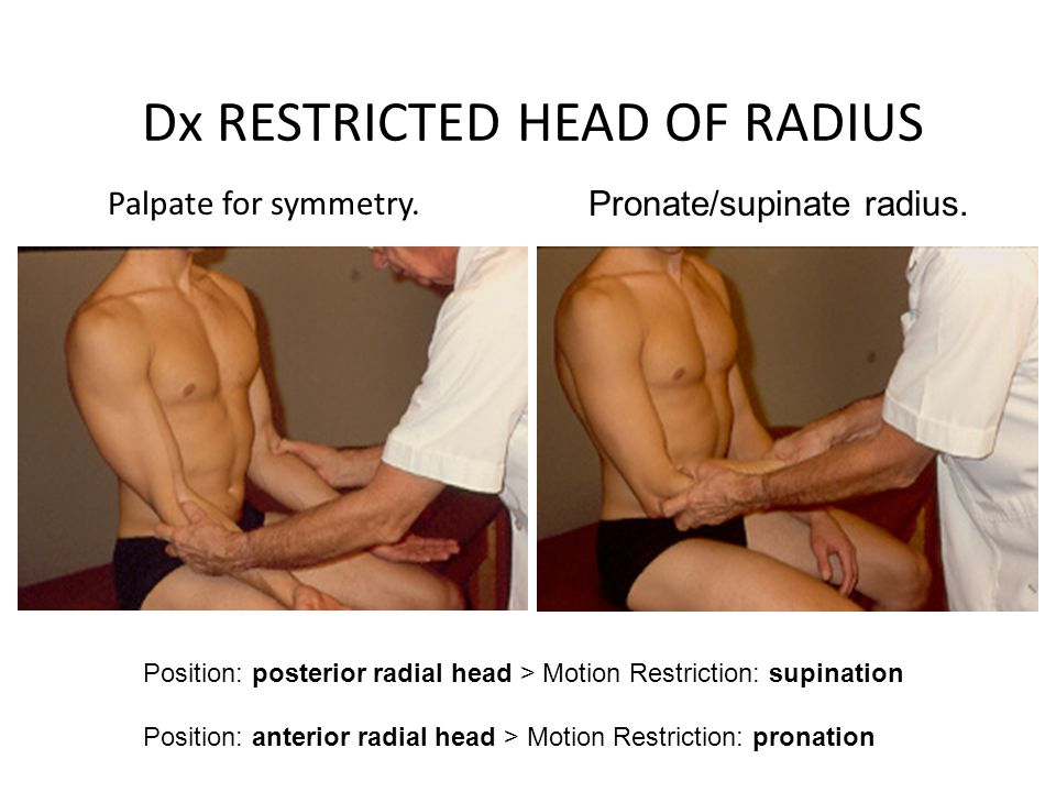 Dx RESTRICTED HEAD OF RADIUS Palpate for symmetry. Pronate/supinate radius. Position: posterior radial head > Motion Restriction: supination Position: