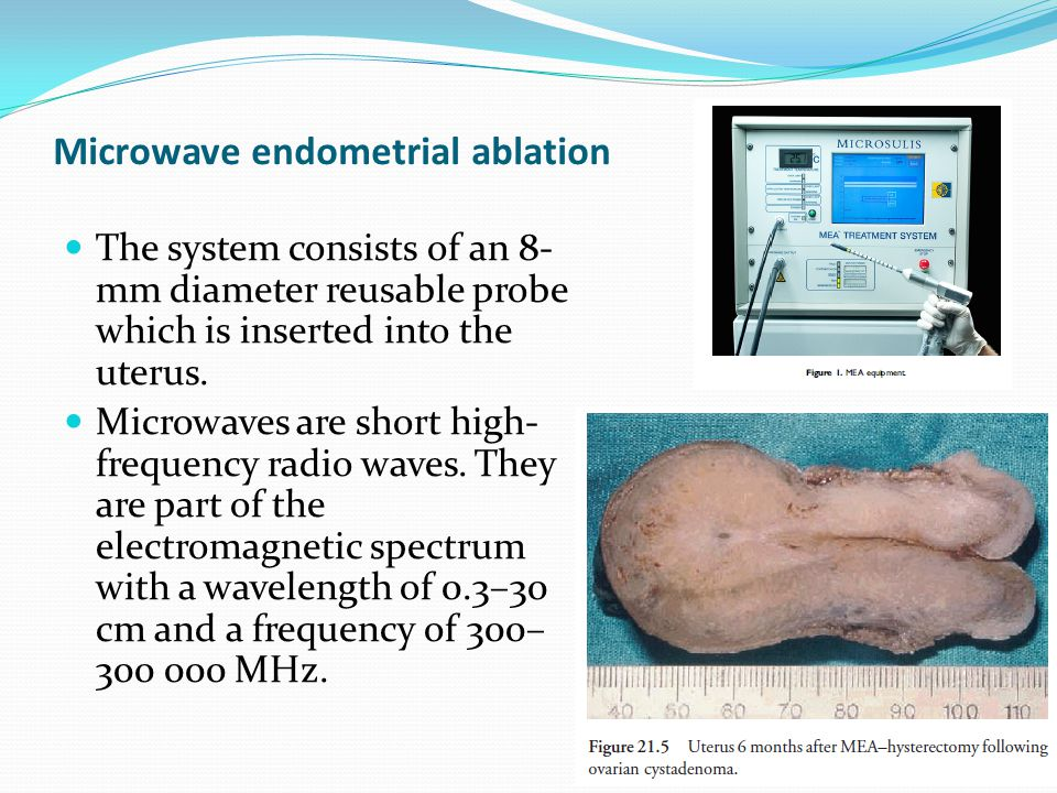 Microwave endometrial ablation The system consists of an 8- mm diameter reusable probe which is inserted into the uterus.