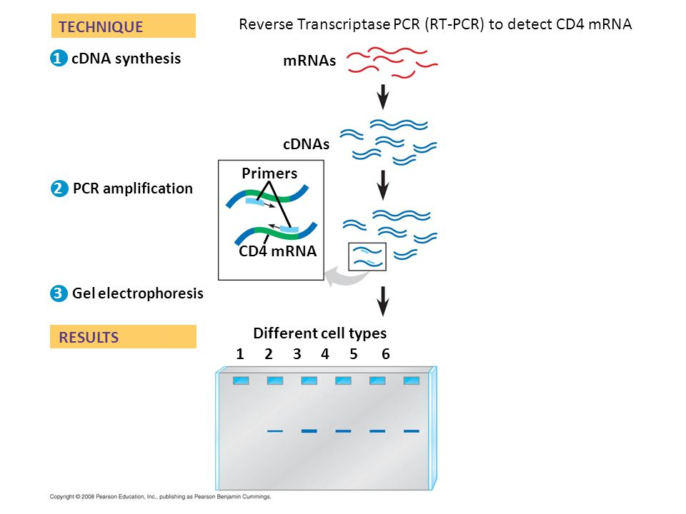 Fig. 20-13 TECHNIQUE RESULTS Gel electrophoresis cDNAs CD4 mRNA PCR amplification Different cell types Primers 1 2 3 4 5 6 mRNAs cDNA synthesis 1 2 3