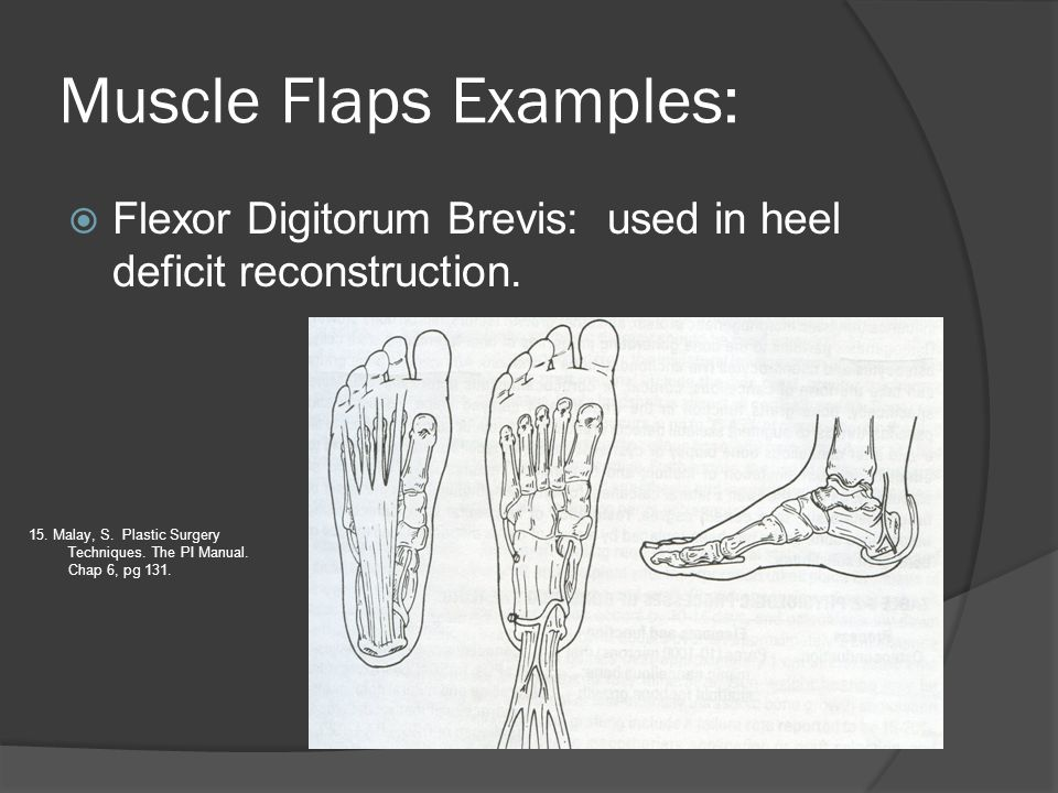 Muscle Flaps Examples: Flexor Digitorum Brevis: used in heel deficit reconstruction. 15. Malay, S. Plastic Surgery Techniques. The PI Manual. Chap 6,