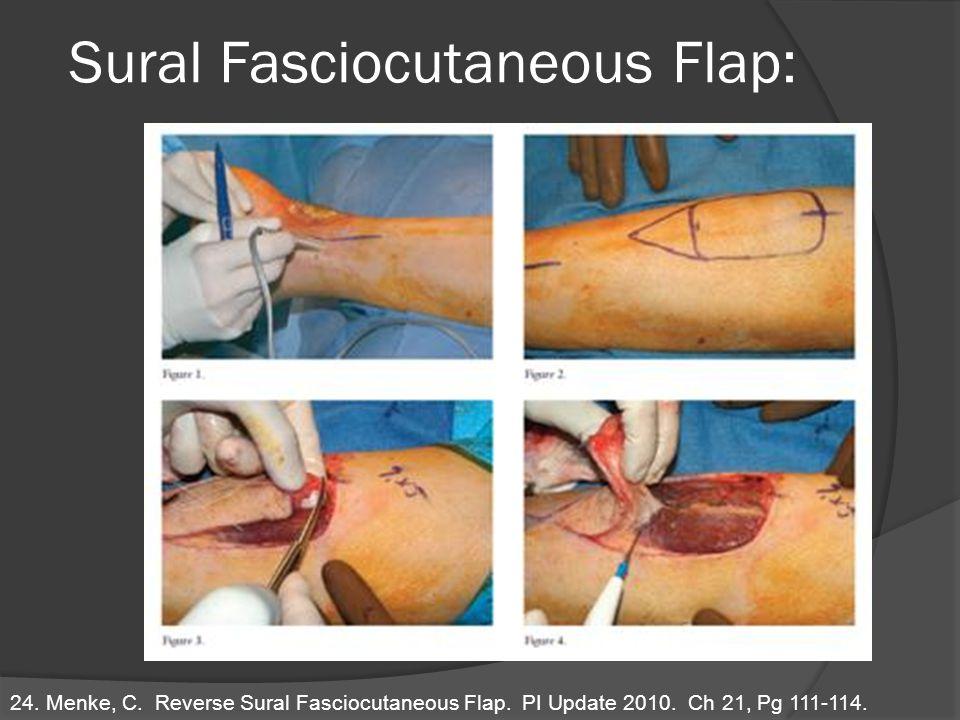 Sural Fasciocutaneous Flap: 24. Menke, C. Reverse Sural Fasciocutaneous Flap. PI Update 2010. Ch 21, Pg 111-114.