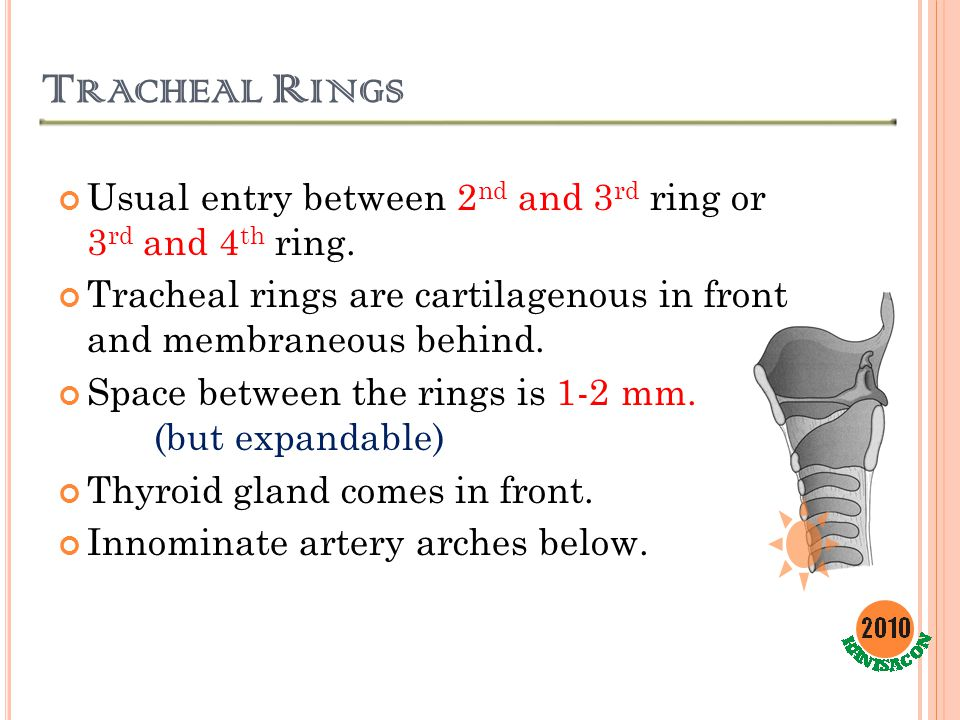 T RACHEAL R INGS Usual entry between 2 nd and 3 rd ring or 3 rd and 4 th ring. Tracheal rings are cartilagenous in front and membraneous behind. Space