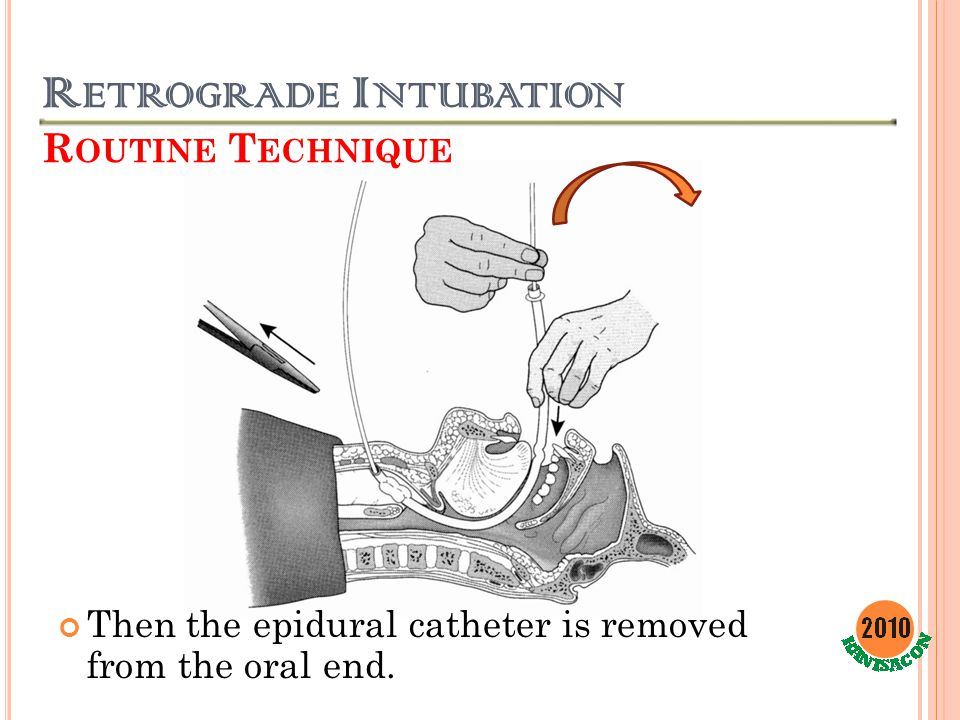 R ETROGRADE I NTUBATION R OUTINE T ECHNIQUE Then the epidural catheter is removed from the oral end.