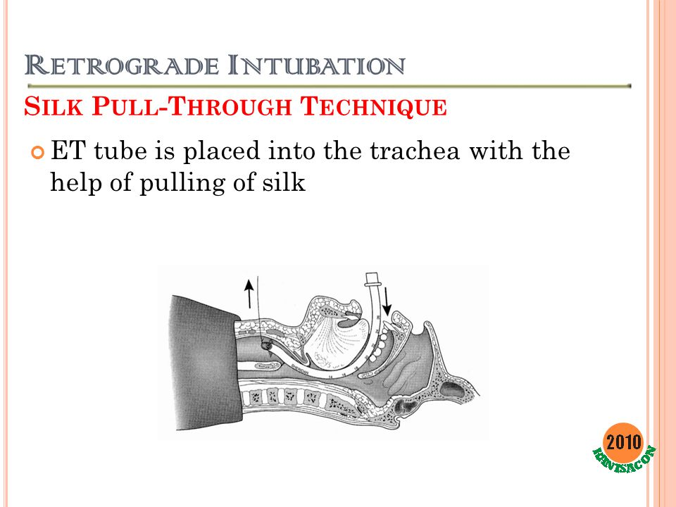 R ETROGRADE I NTUBATION S ILK P ULL -T HROUGH T ECHNIQUE ET tube is placed into the trachea with the help of pulling of silk