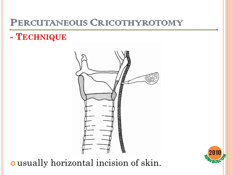 P ERCUTANEOUS C RICOTHYROTOMY - T ECHNIQUE usually horizontal incision of skin.