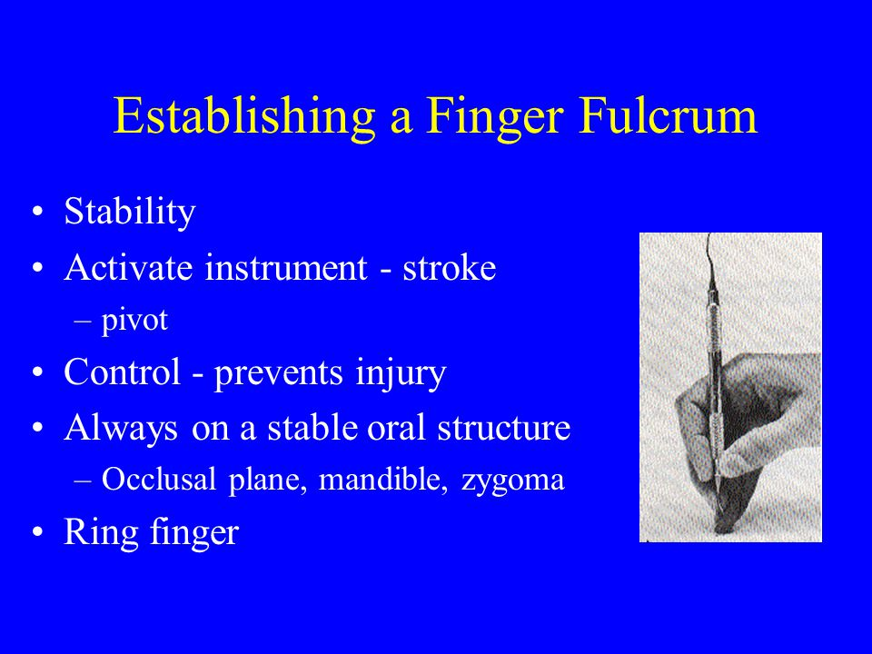 CLINIC DEMONSTRATION H6/7 Sickle Scaler –Shank slightly curved –Review on clinic floor 15 H6/7 33