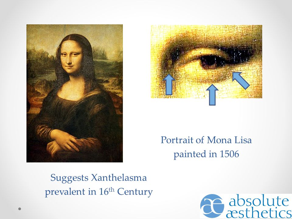 Portrait of Mona Lisa painted in 1506 Suggests Xanthelasma prevalent in 16 th Century
